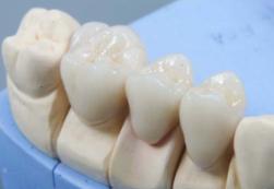 Как клиника проводит протезирование зубов