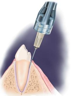 Анестезия, зубы, беременность - можно ли лечить зубы в интересном положении?