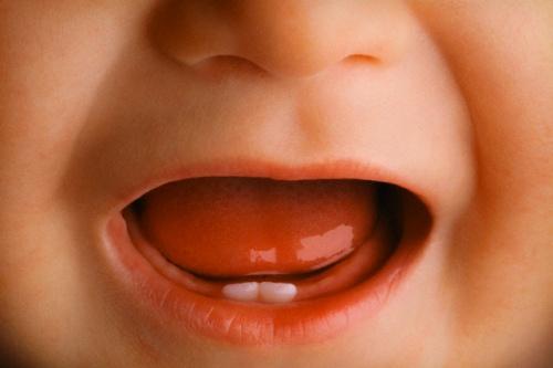 Боли при прорезывании зубов - касается многих возрастных групп