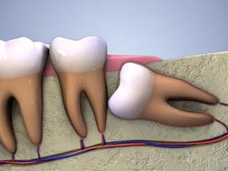 Болит 8 зуб - инструкция к действиям