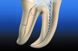 Болит канал зуба – как с этим бороться