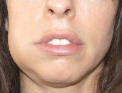 Болит зуб, опухла десна – повод срочно посетить стоматолога