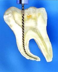 Болит зуб после чистки каналов – реакция организма на удаление нерва