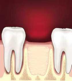 Болит вырванный зуб мудрости: причины проблемы