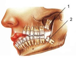Болят ли зубы мудрости и что делать при боли