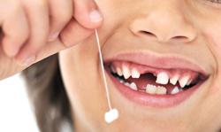 Болят молочные зубы - необходимо менять отношение к гигиене и посещениям стоматолога