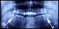 Болят нижние зубы – лечение