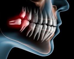 Болят корни зубов – лечение