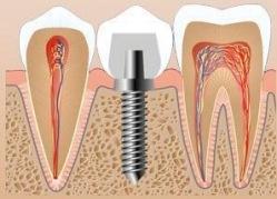 Где вставлять зубы?