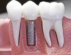 Имплантаты зубов – современный способ протезирования