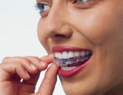 Исправить зуб можно несколькими способами