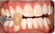 Желтые зубы - пора бросать вредные привычки