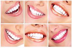 Как отбелить зубы максимально эффективно