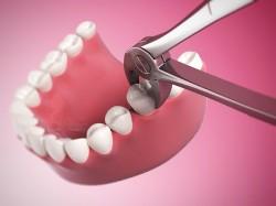 Как вырвать зуб без боли
