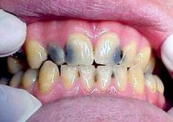 Кариес переднего зуба - заметить и предотвратить