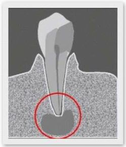 Киста зуба - опасное заболевание