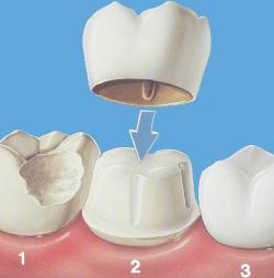 Установлена коронка, болит зуб – что делать?
