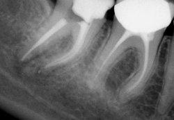 Лечение корней зуба возможно и нет необходимости в удалении