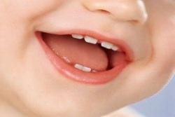 Лечение молочных зубов и его особенности