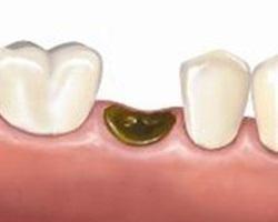Лечение после удаления зуба - экстренная мера