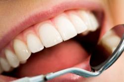Наращивание зубов – возможность полного восстановления