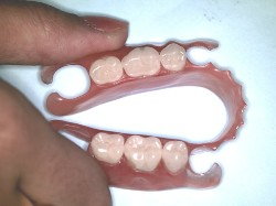 Нейлоновые зубные протезы, зачем они нужны