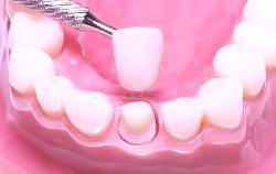 Ортопед зубной - в чем состят особенности его работы