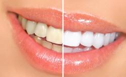 Отбеливание зубов — цены вполне доступны