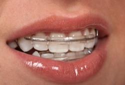 Пластинка для зубов сделает улыбку красивой