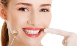 Почему болят передние зубы? В основном из-за неправильного ухода