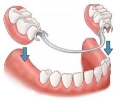 Покрывной протез зубов — цена выше, чем у остальных видов протезирования
