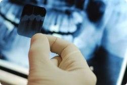 Рентген зуба: как и зачем
