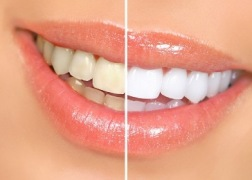 Сделать зубы белее сегодня можно  разными методами