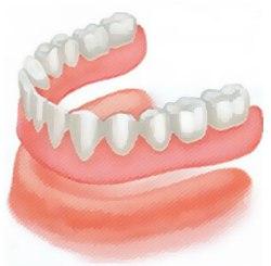 Съёмное зубное протезирование  - для чего, как, когда