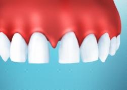 Щель между зубами не только косметический недостаток