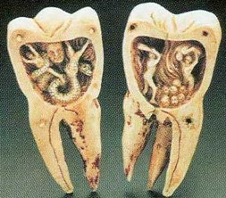 Стоматология - отзывы о вариантах лечения