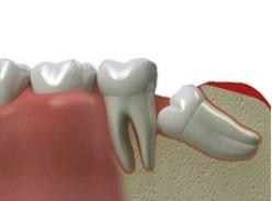 Удаление зуба мудрости может быть сложной операцией