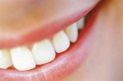 Удаление зубного камня ультразвуком как регулярная процедура
