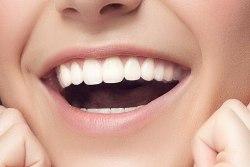 Ультразвуковая чистка зубов: необходимая процедура