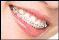 Выравнивание зубов: сложно ли это?