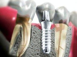 Восстановить зуб - способы и методы