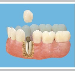 Восстановить зуб сегодня не проблема