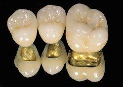 Восстановление зубов с помощью металлокерамики