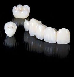Протезирование зубов - цены зависят от многих факторов