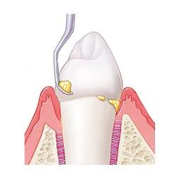 Зубной камень - цены на удаление