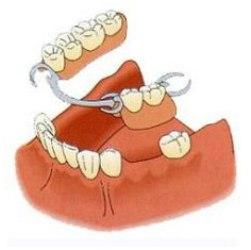 Зубной протез - стоимость на слепок и установку