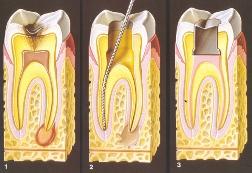 Зубные каналы - заболевания и лечение