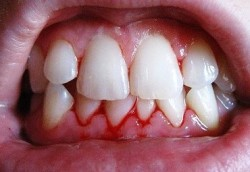 Зубы, десны: связаны неразрывно