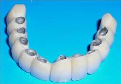 Зубы: металлокерамика идеальное средство для восстановления