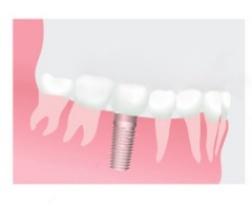 Зубные имплантанты и их популярность